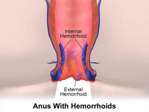 prévenir hémorroïdes avec vie saine