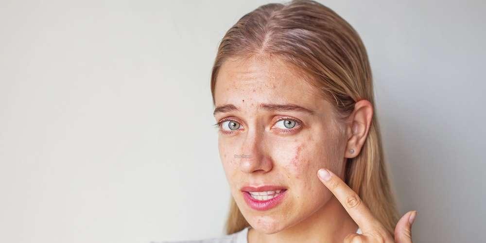 Exfoliant pour les peaux acnéiques